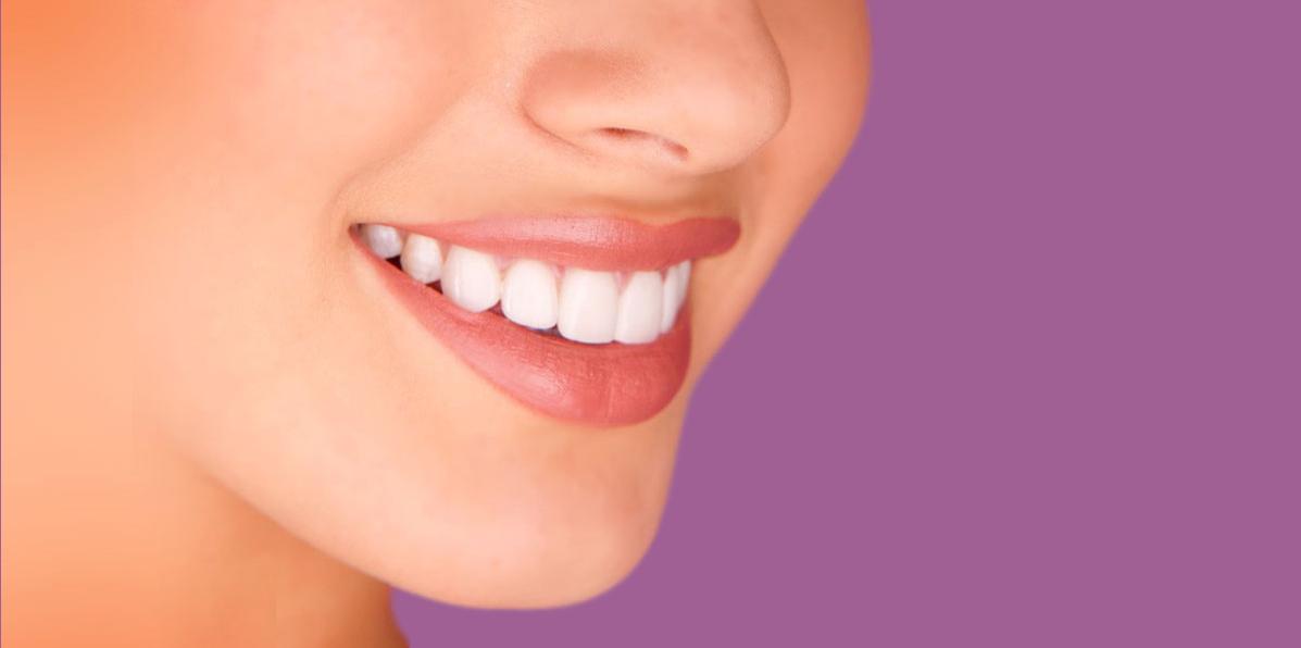 estetica dental en monterrey