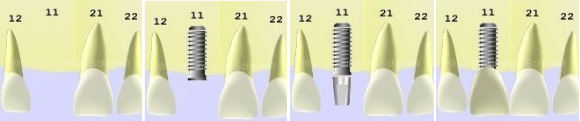 implantes dentales en monterrey