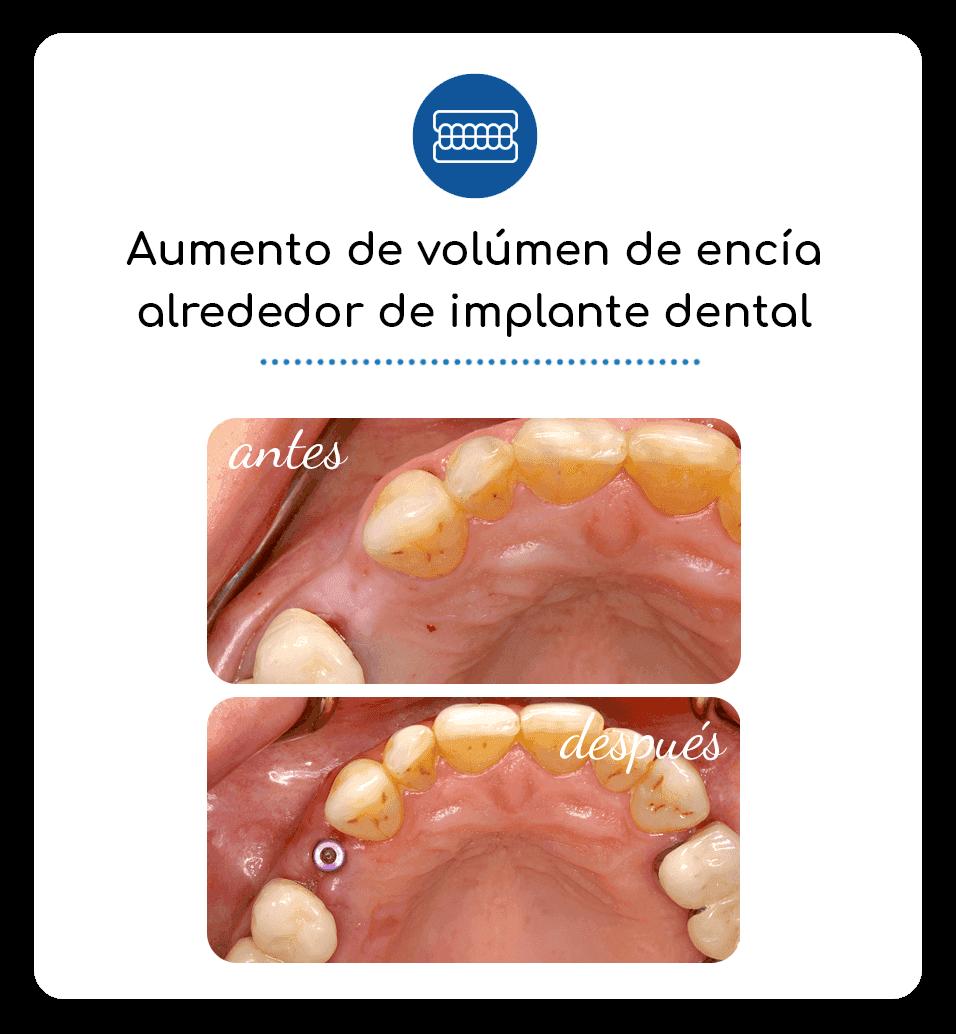 Aumento de volúmen de encía alrededor de implante dental