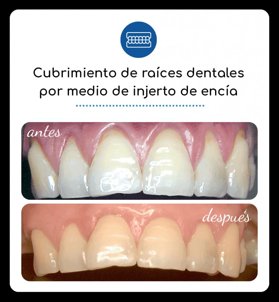 Cubrimiento de raíces dentales por medio de injerto de encía