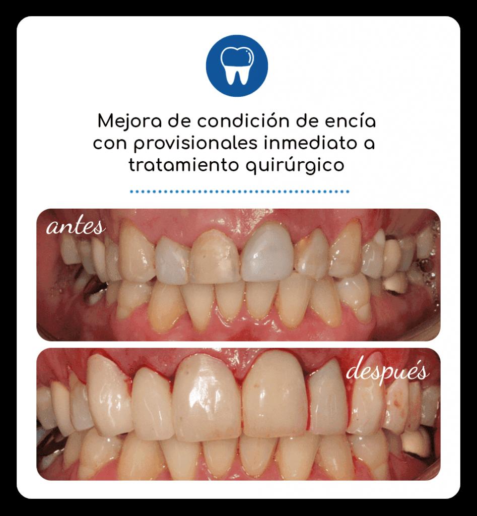 Mejora de condición de encía con provisionales inmediato a tratamiento quirúrgico