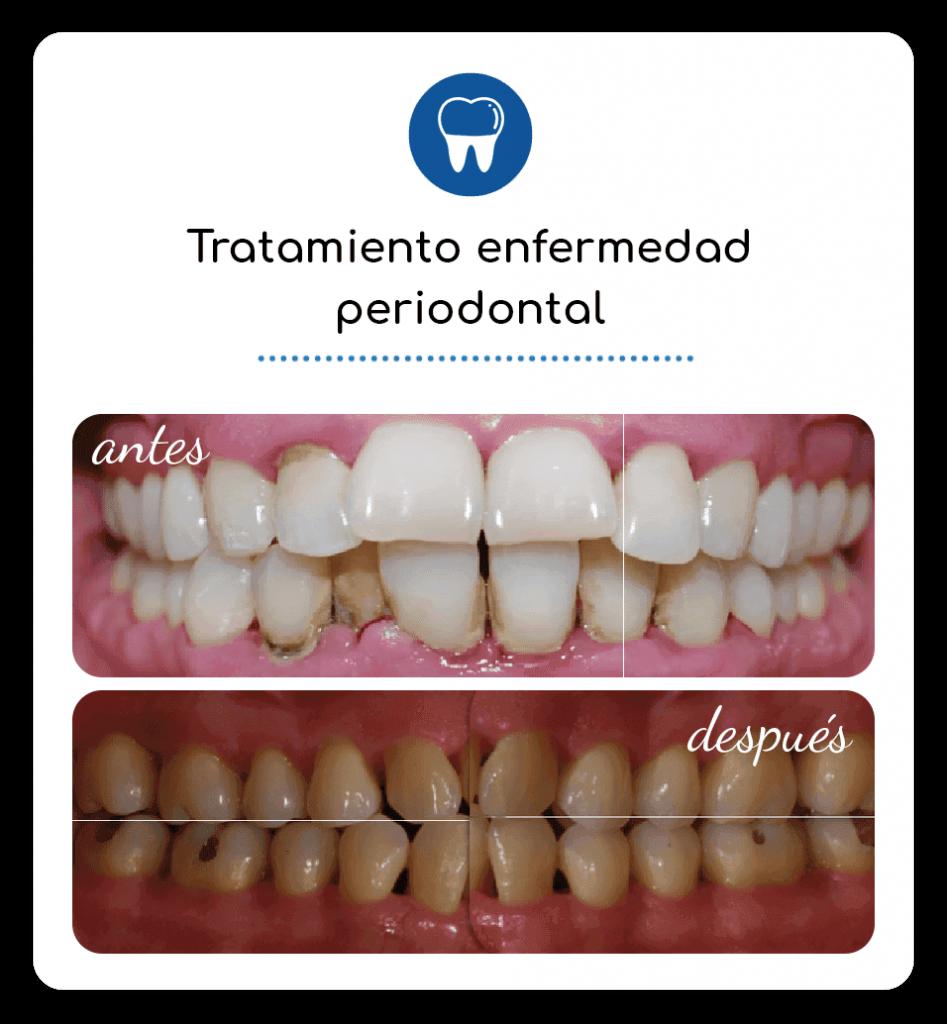Tratamiento enfermedad periodontal