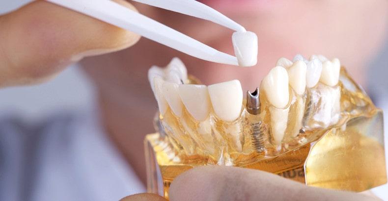 precio de un implante dental en monterrey