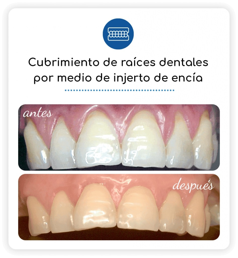 cubrimiento de raices dentrales