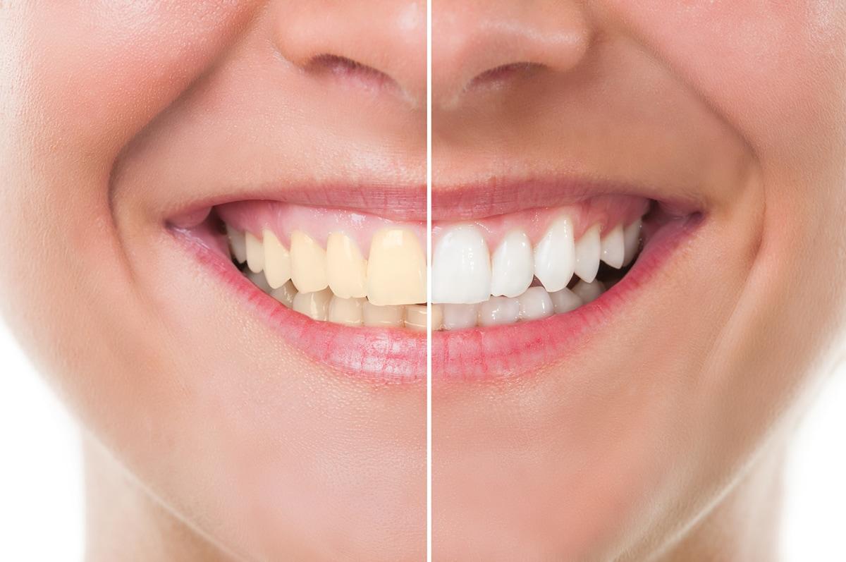 Cosmetología dental en Monterrey