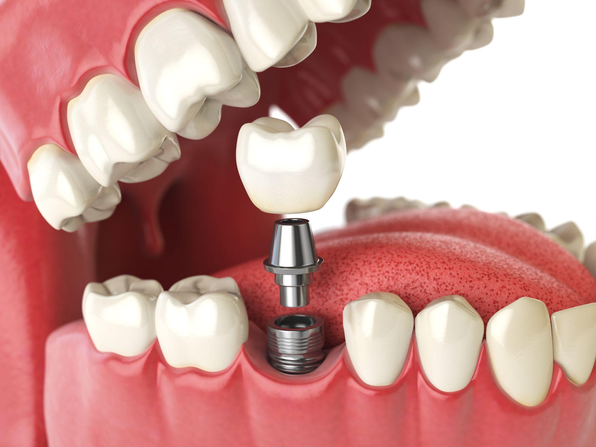 implantes dentales en san pedro garza garcía