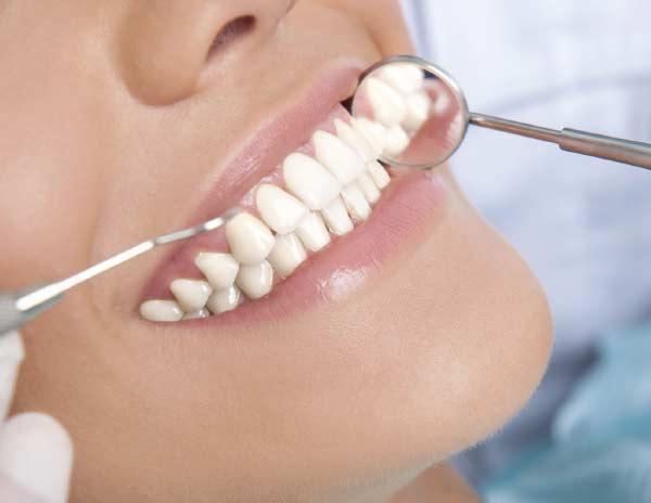 Limpiezas periodontales en Monterrey