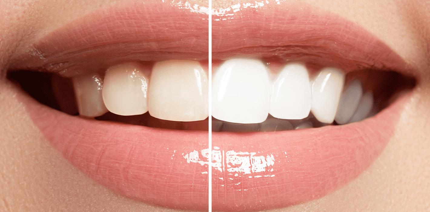 Blanqueamiento dental San Pedro