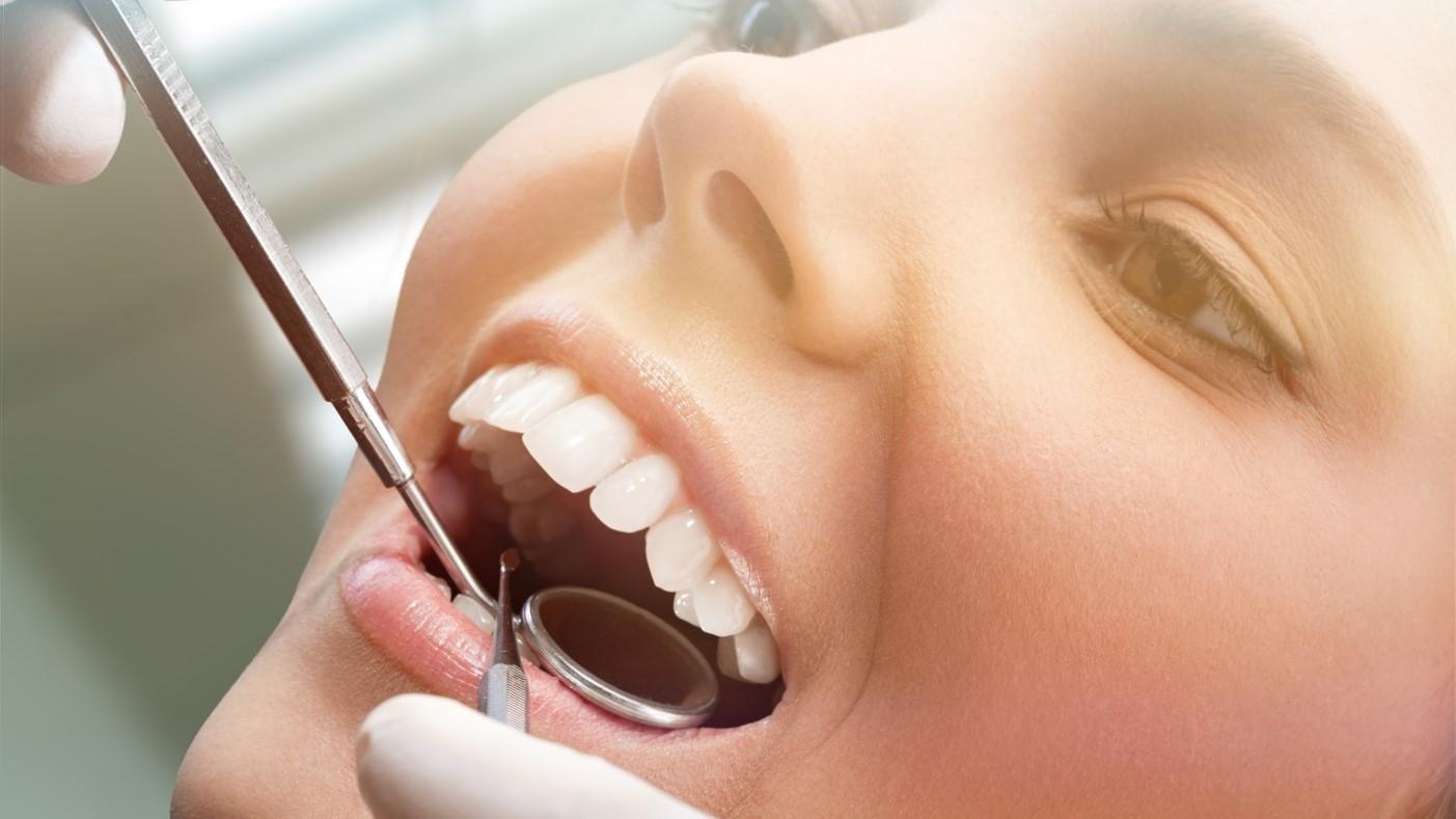 Limpieza dental San Pedro